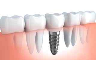 oralna hirurgija